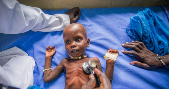 Powerful photos from South Sudan, November 2014. Photograph credit: Peter Biro.